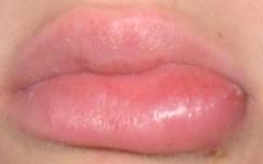 Das Piercing-Forum: Lippe, Cheeks » Monsterlippe!